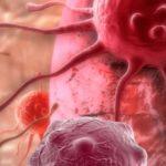 Aloe Vera gegen Krebs